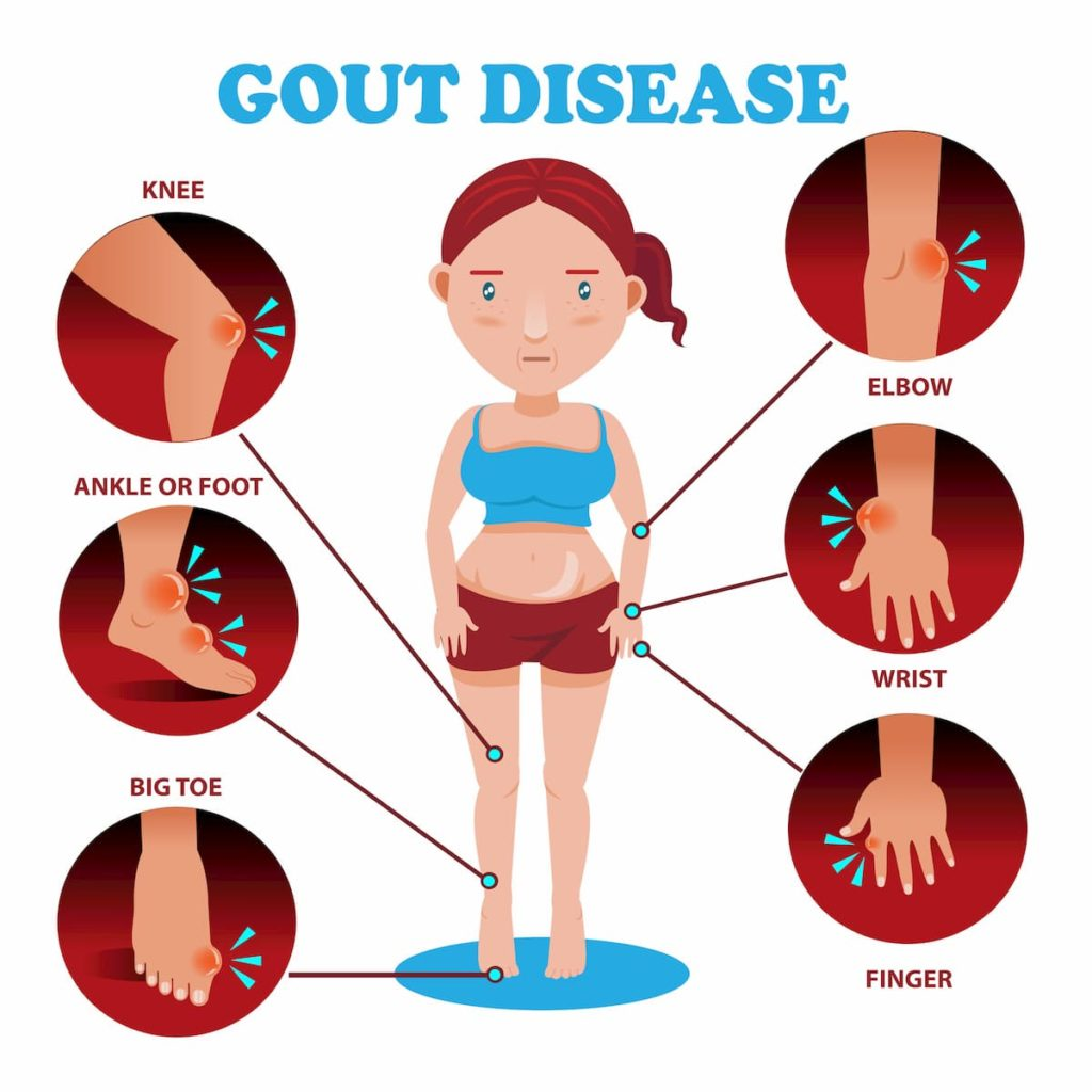 Gout Locations Chart - Does a Carnivore Diet Cause Gout